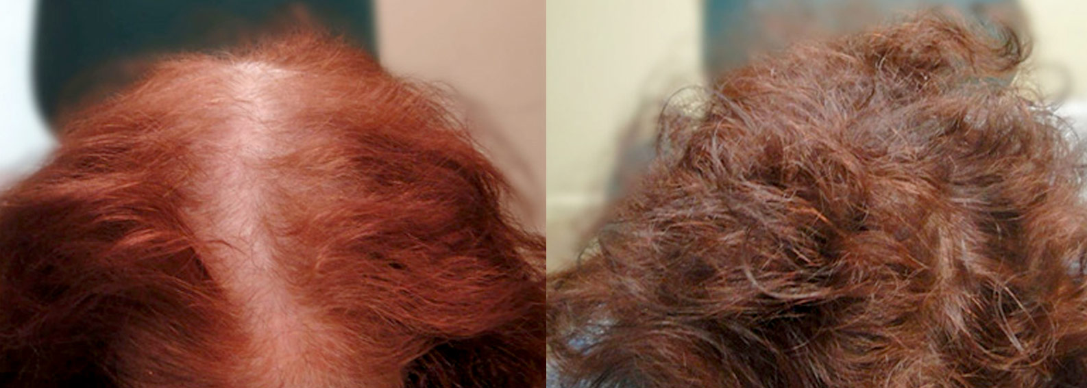 FUE Before & After Photo with amazing results.