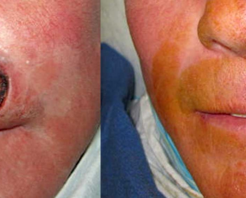 Before & After Facial Surgery Photo