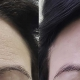 Woman's forehead with wrinkles before Botox and none after Botox