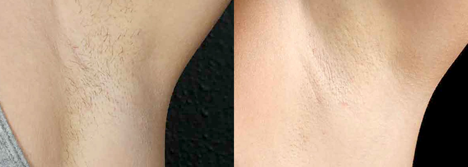 Laser Hair Removal with Cutera CoolGluide