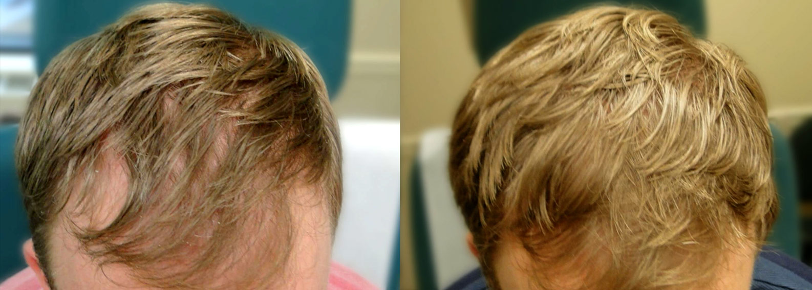 PRP Therapy Before & After Photo