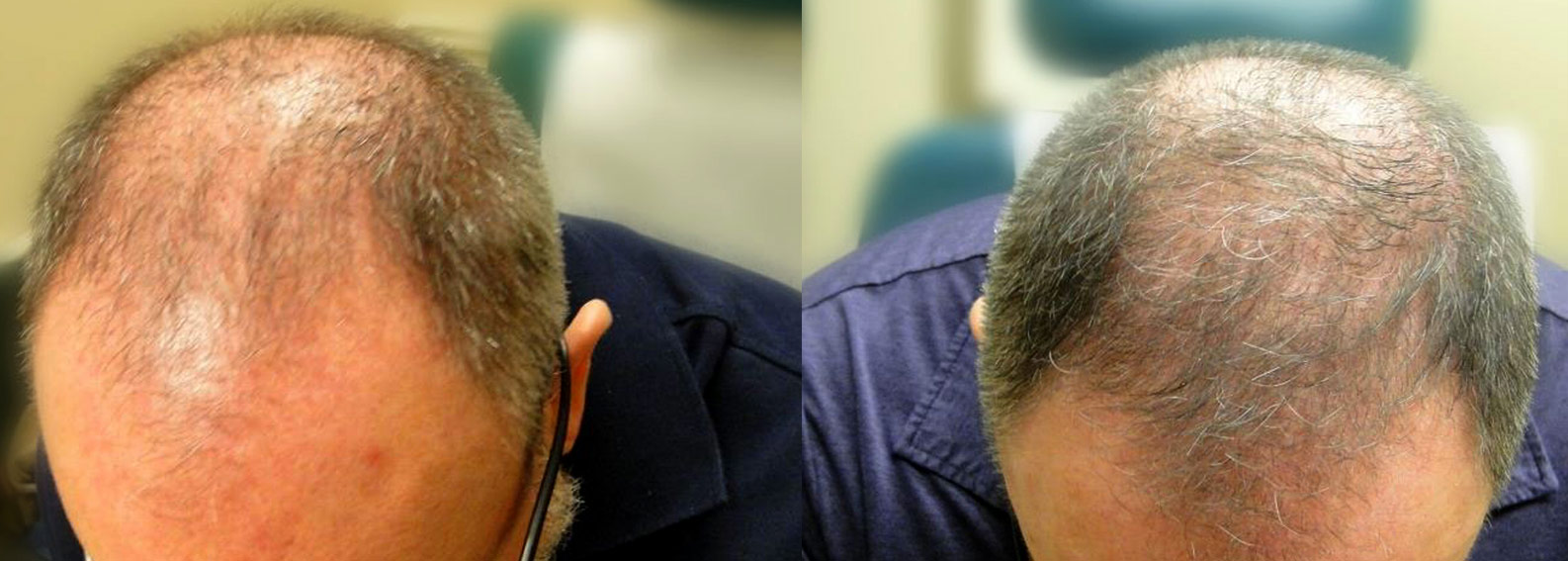 Crown hair transplant before and after photo.