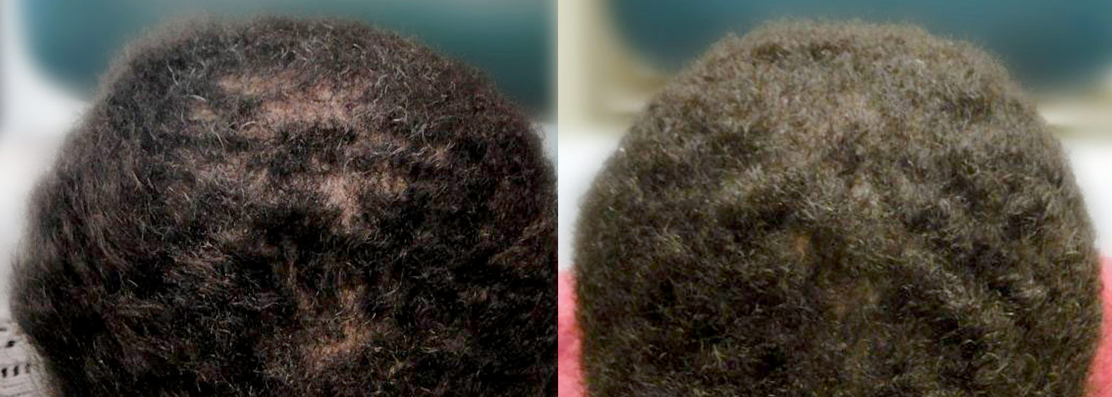 Before (left) & after (right) photo of an ethnic hair transplant.