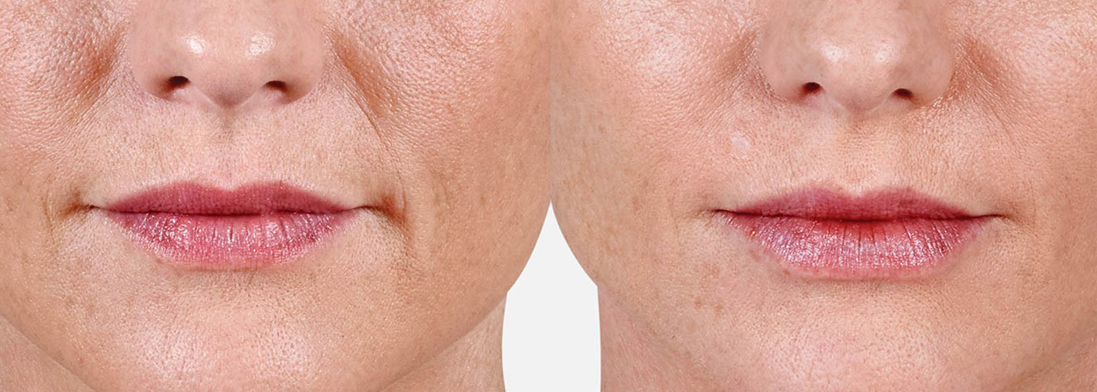Before and after photo of woman with Juvederm lip injections showing fuller, plump lips.