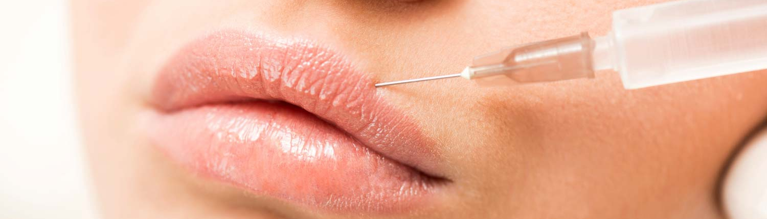 Woman having fillers injected into her lips.