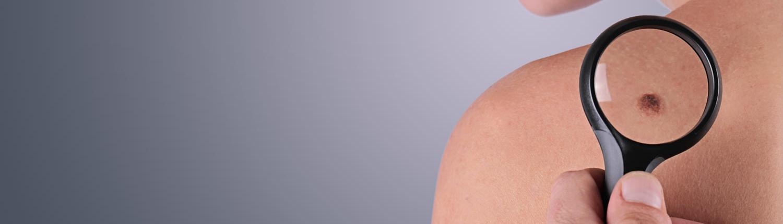 Medical Dermatology Mole Inspection