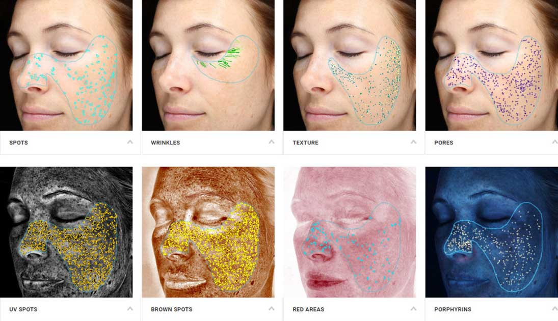 Complexion Analysis Scan with the VISIA system showing 8 photos.