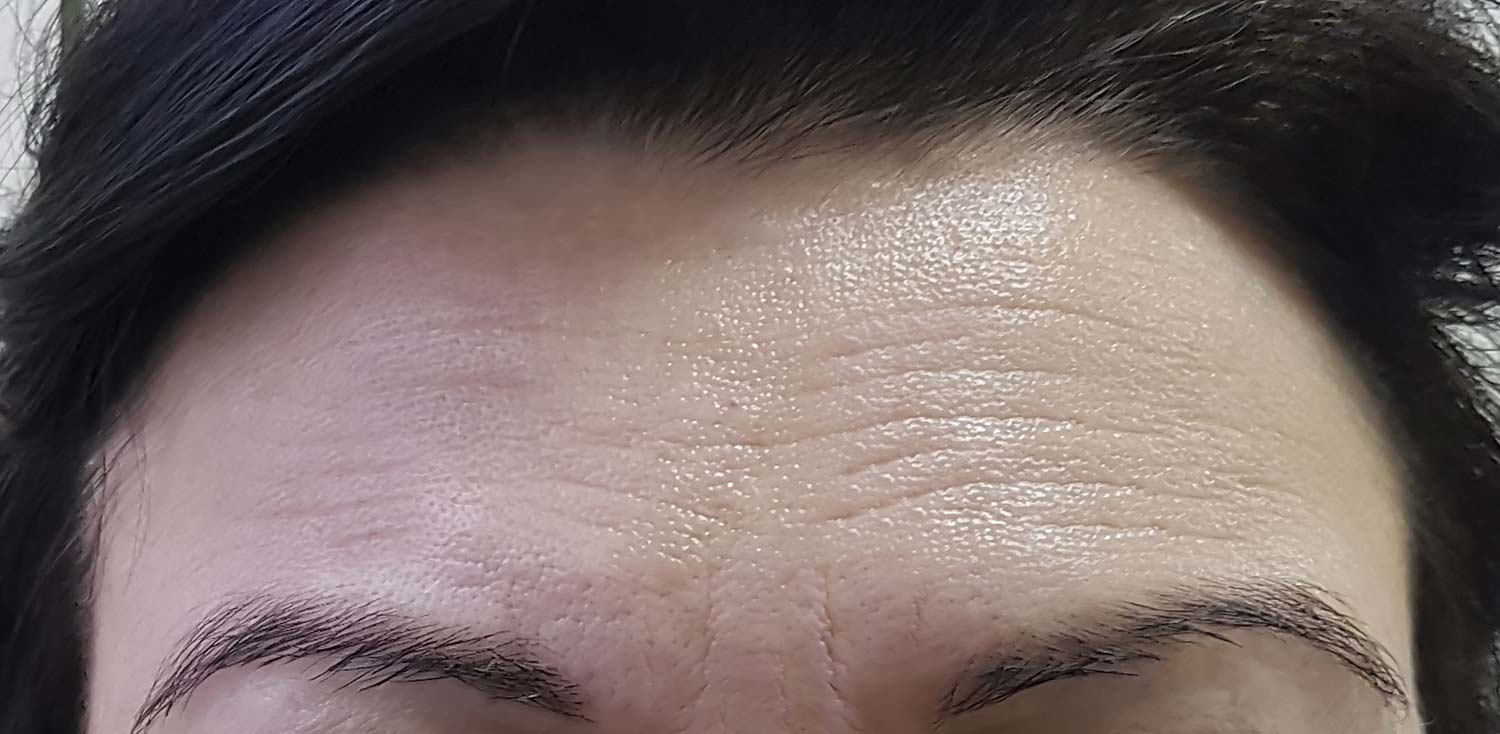 Woman's forehead before Botox treatment with wrinkles.