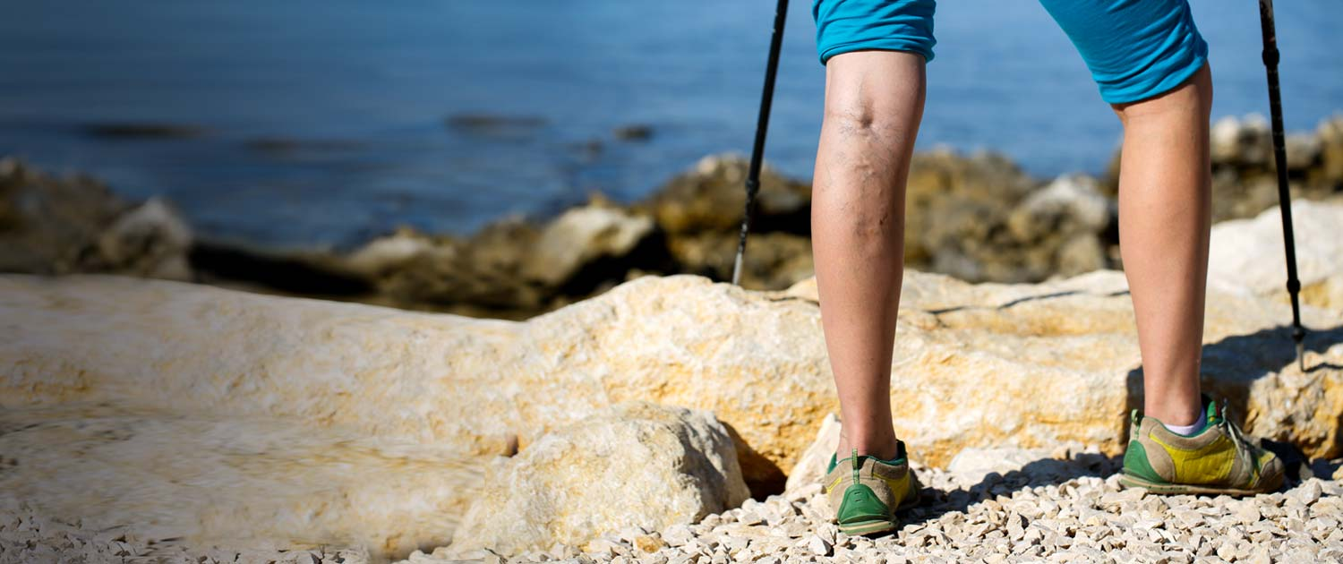 Woman hiking with visible varicose veins.