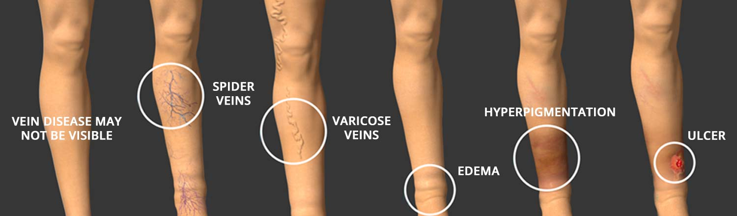 Progression of vein disease.