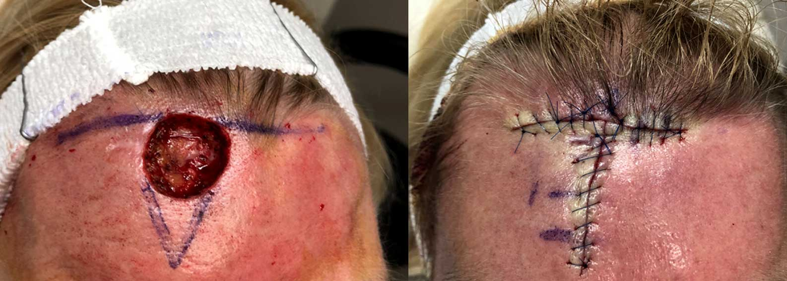 Before and after of Mohs skin cancer surgery on a woman's forehead.