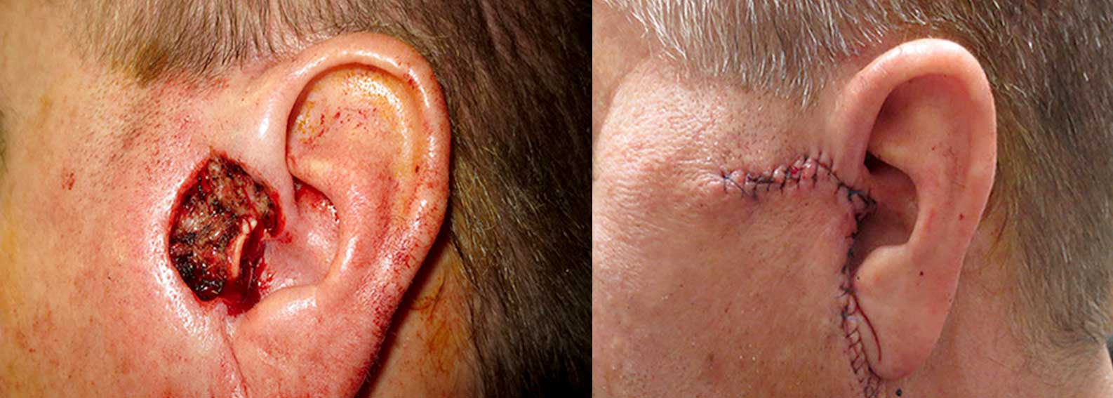 Before and after of Mohs skin cancer surgery on a patients ear.
