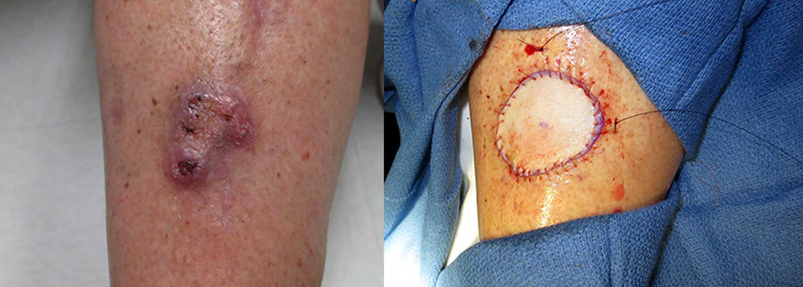 Before and after of skin cancer removal on a leg with skin graft.