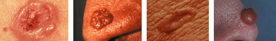 Four different photos of Basal Cell Carcinoma (BCC) skin cancer.