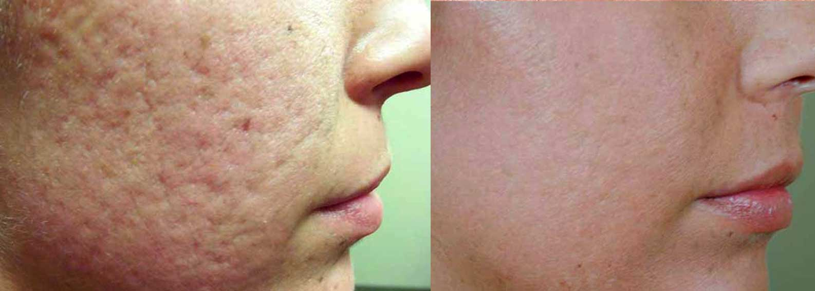 Before & After Photo of a woman's cheeks using laser Genesis