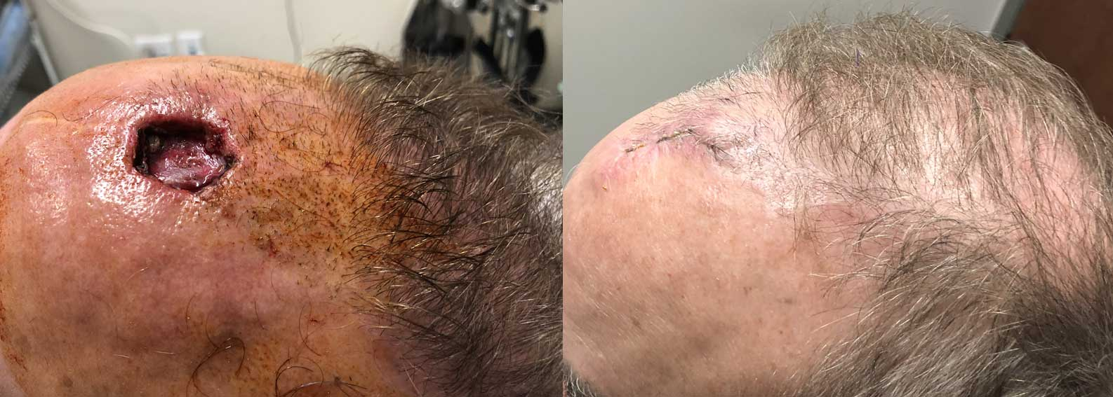 Before & after of Skin cancer Surgery