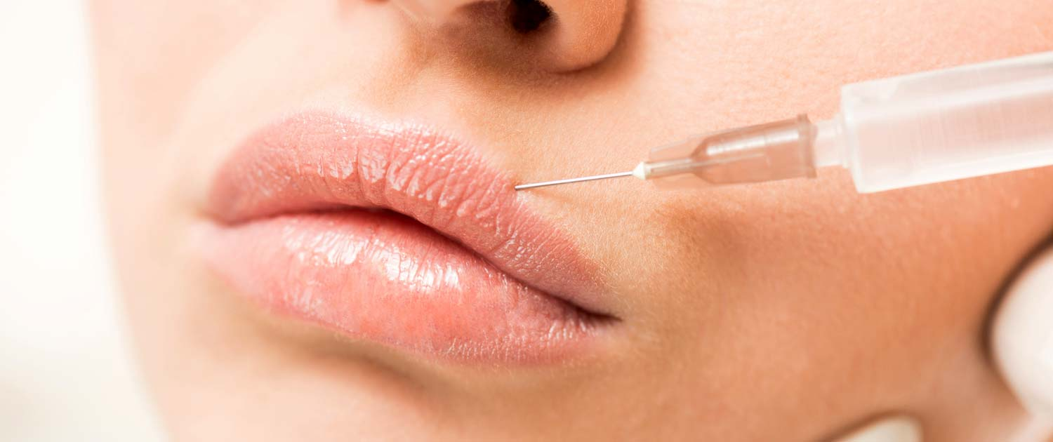 Woman getting filler injections in her lips