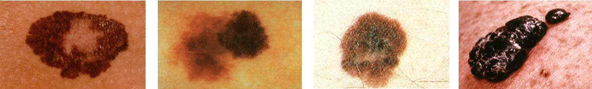 Four photos showing different variations of Melanoma skin cancer