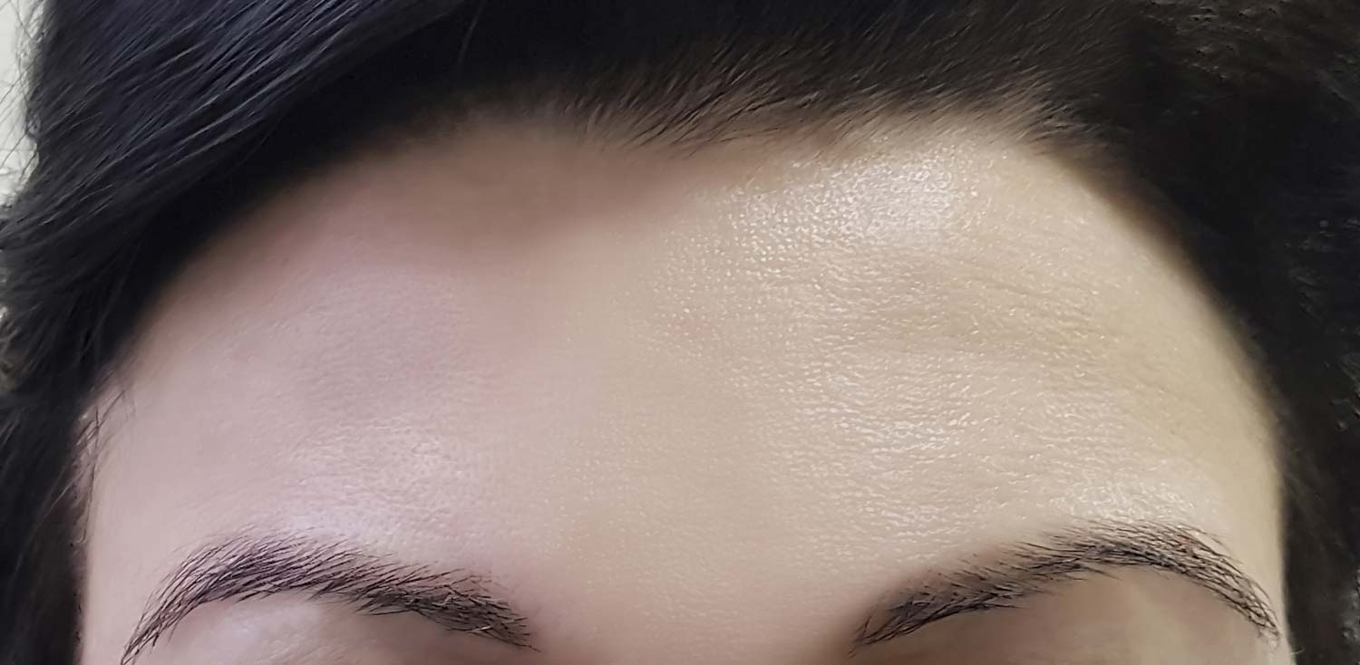 Woman's fore head after Botox treatment without wrinkles.