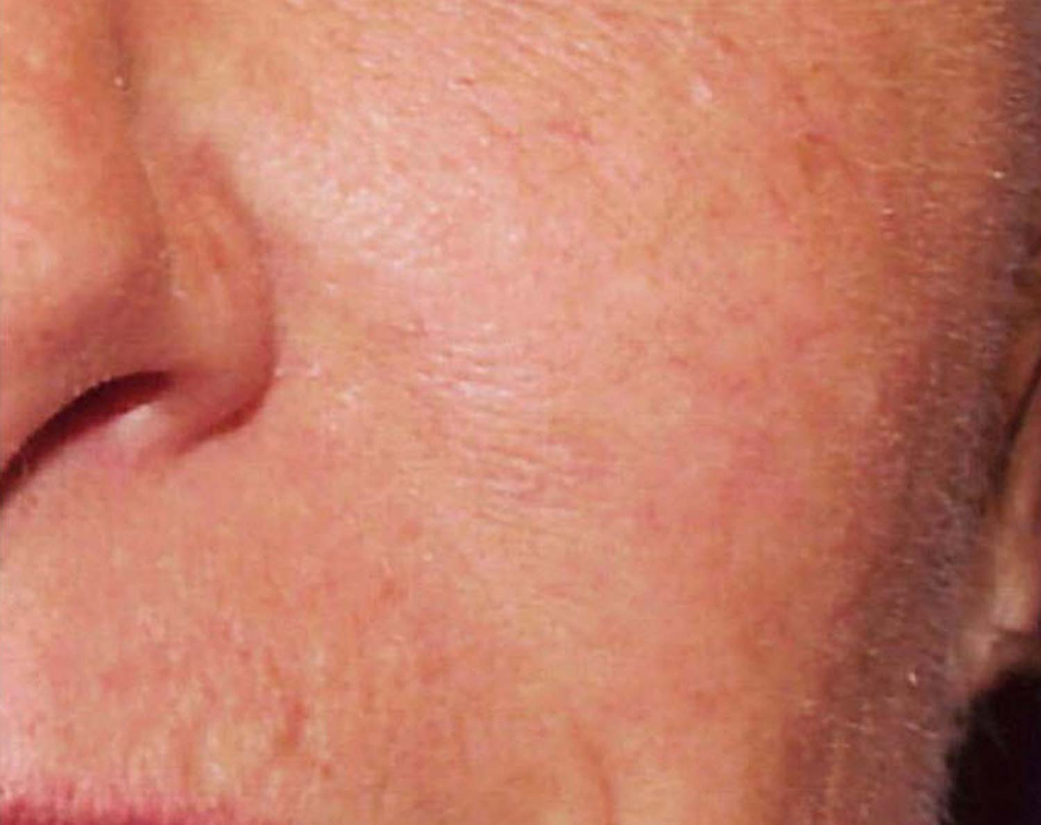 Spider veins on a patients face are completely gone after laser treatment.