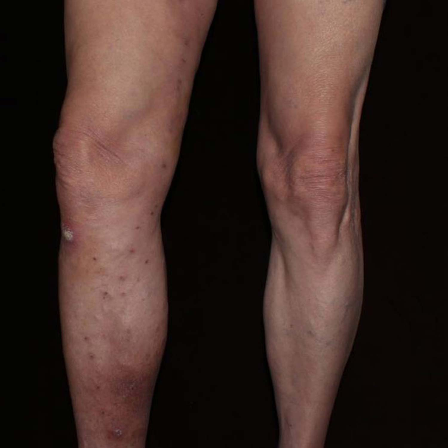 Varicose Vein after surgery is gone.