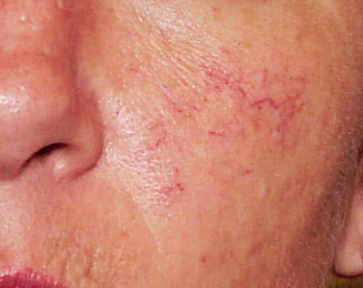 Spider veins on a patients face before laser treatment.