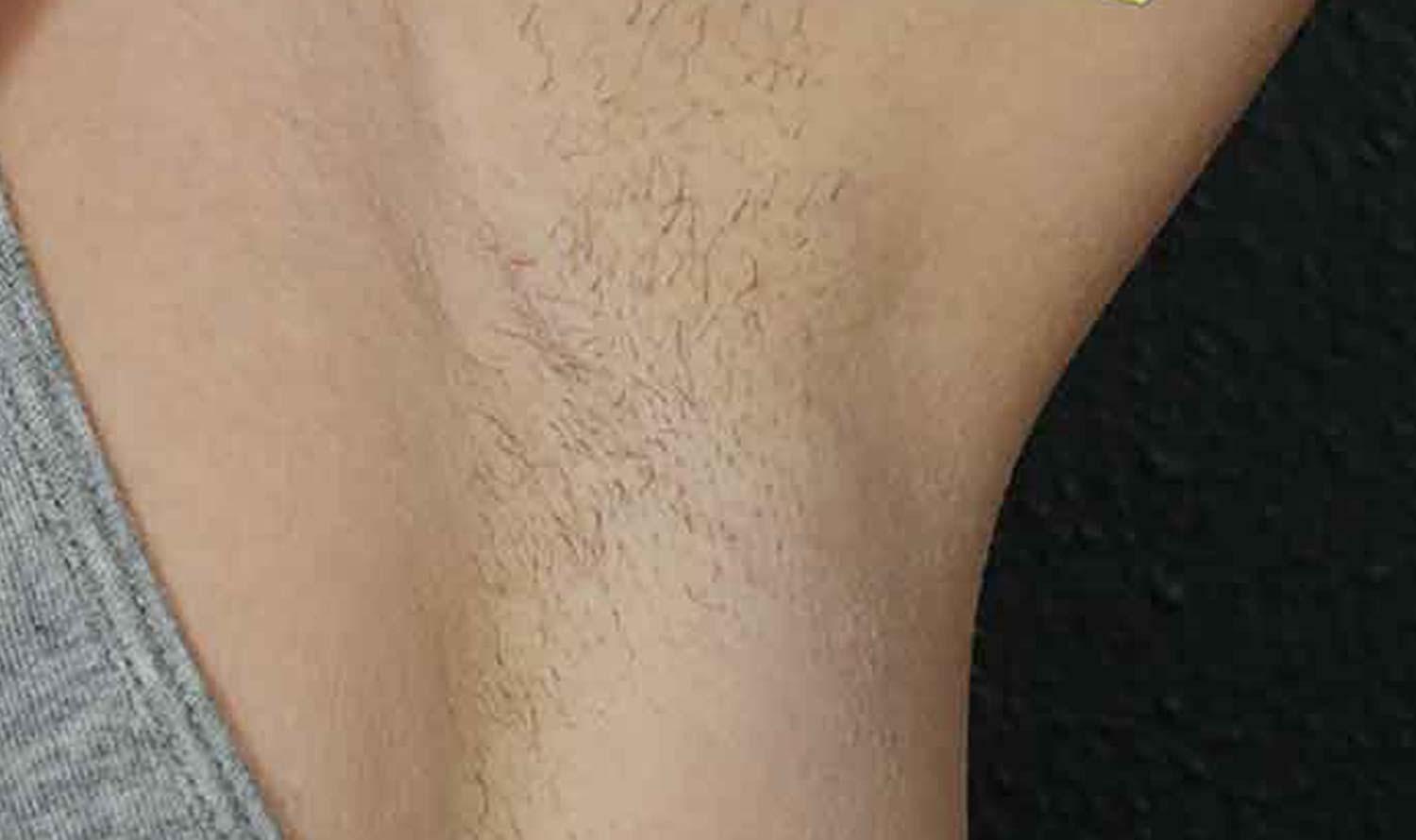 Patients arm pit has hair prior to laser hair removal.