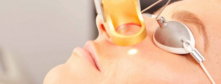 Spider Veins being removed from a females face with laser treatment