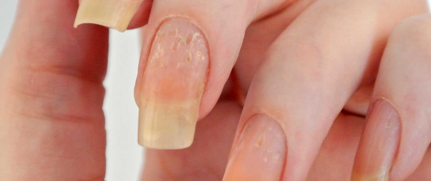 Finger nails with disorder