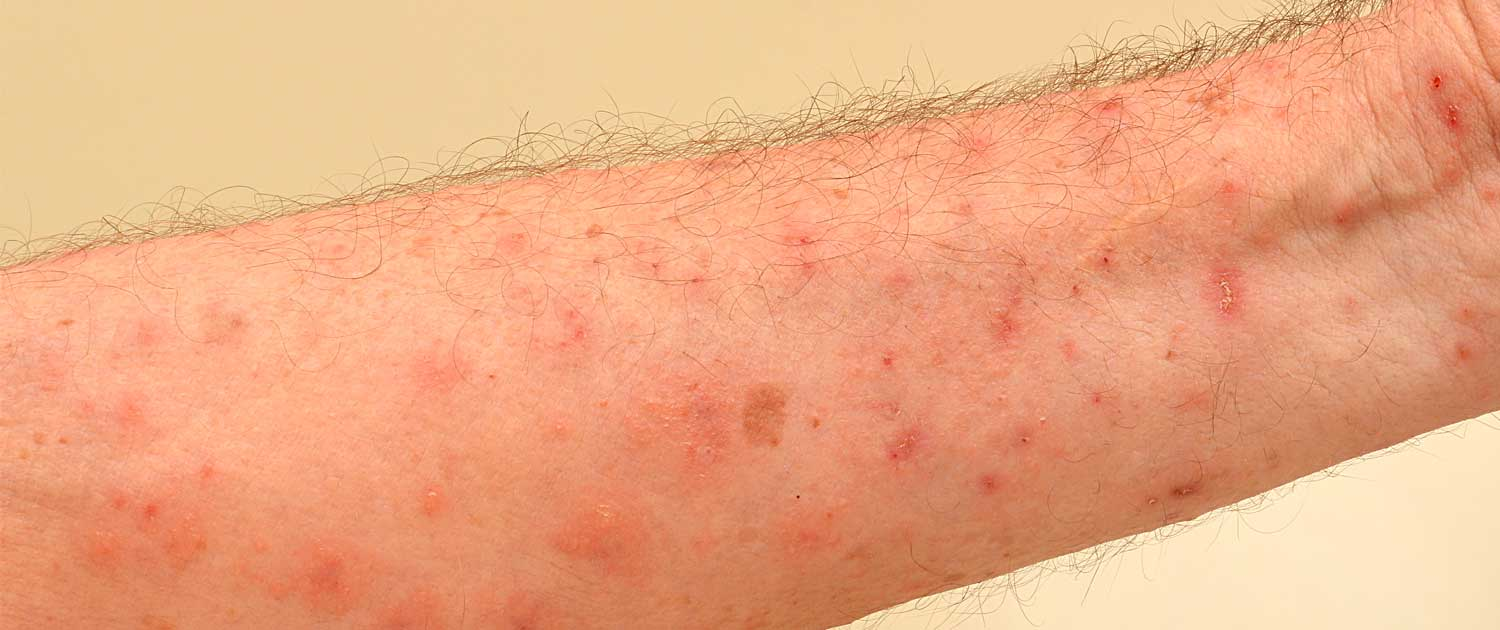 Scabies on a patient's forearm
