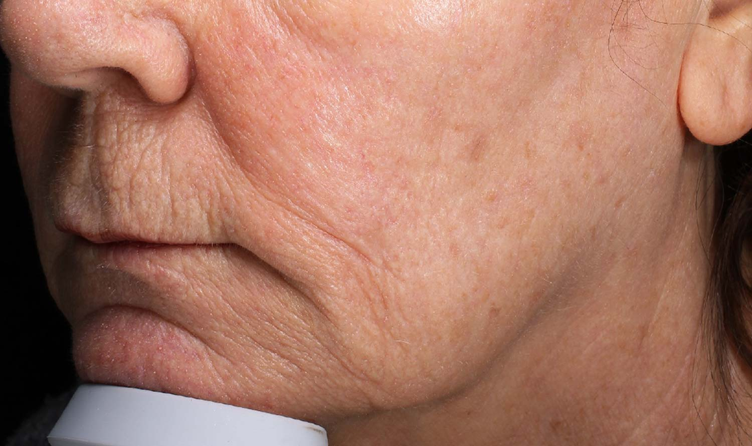 After filler injections of woman's tightened jowl.