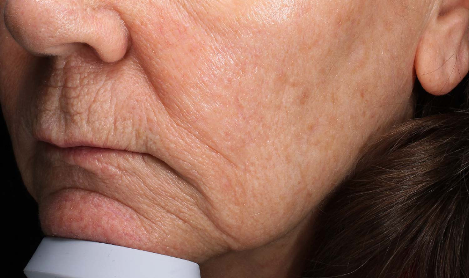 Before filler injections of woman's sagging jowl.